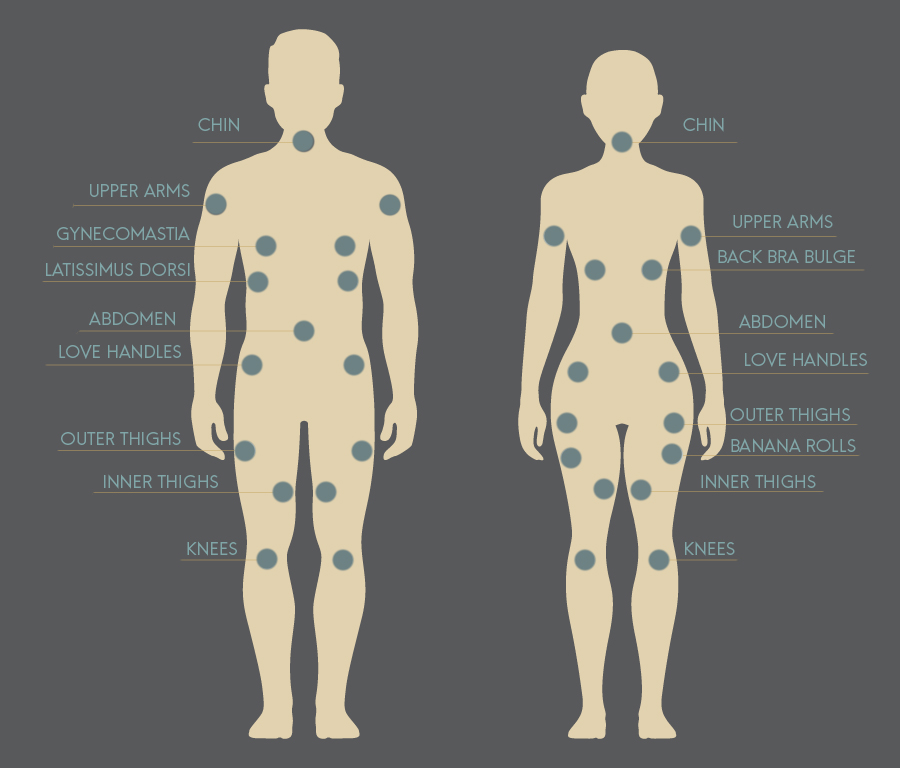Body Animation