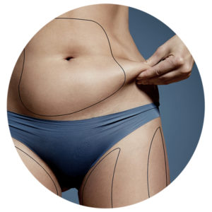 FAT CAVITATION Treatment